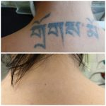 voor en na alisha.jpg