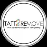 Logo Tattremove.png