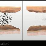 laseren-tattoo-e1487770703123.png