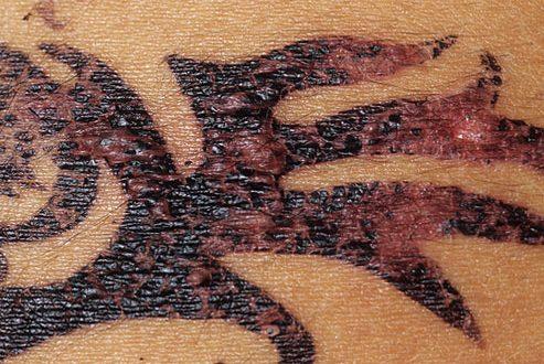 Ontstoken tattoo
