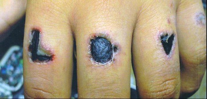wat te doen bij allergische reactie huid