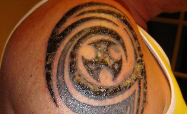 Tattoo ontstoken
