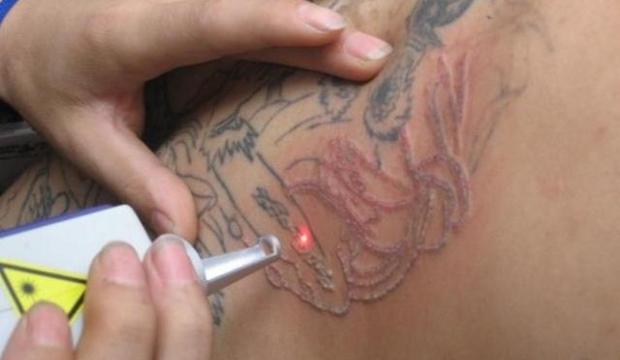 Tattoo verwijderen met laser